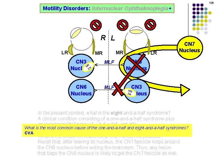 106 Motility Disorders: Internuclear Ophthalmoplegia+ R L MR CN 3 R M SN Nucleus