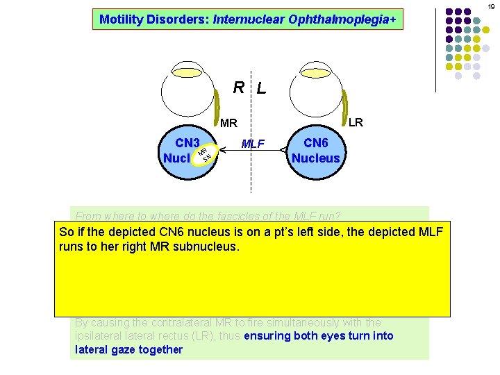 19 Motility Disorders: Internuclear Ophthalmoplegia+ R L LR MLF CN 6 Nucleus ^ CN