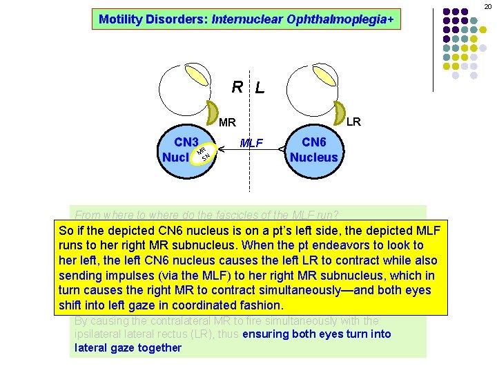 20 Motility Disorders: Internuclear Ophthalmoplegia+ R L LR MLF CN 6 Nucleus ^ CN