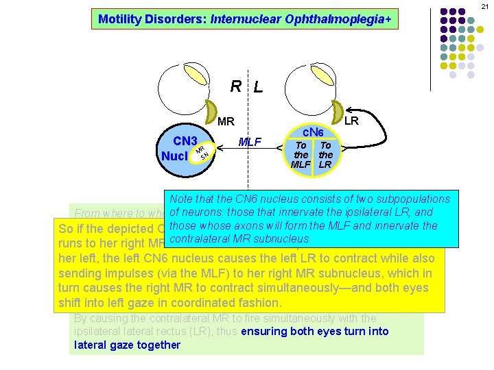 21 Motility Disorders: Internuclear Ophthalmoplegia+ ^ R L ^ MLF CN 6 To To
