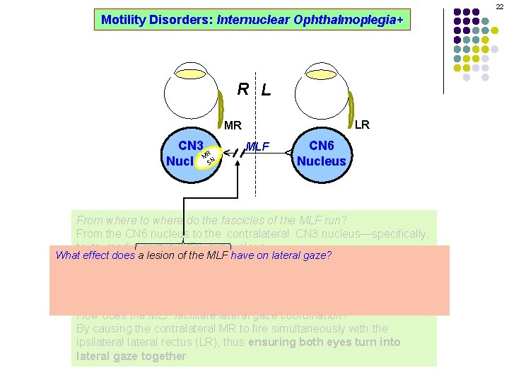 22 Motility Disorders: Internuclear Ophthalmoplegia+ R L LR MLF CN 6 Nucleus ^ CN