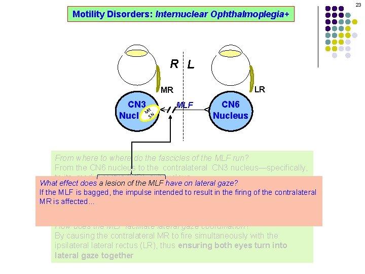 23 Motility Disorders: Internuclear Ophthalmoplegia+ R L LR MLF CN 6 Nucleus ^ CN