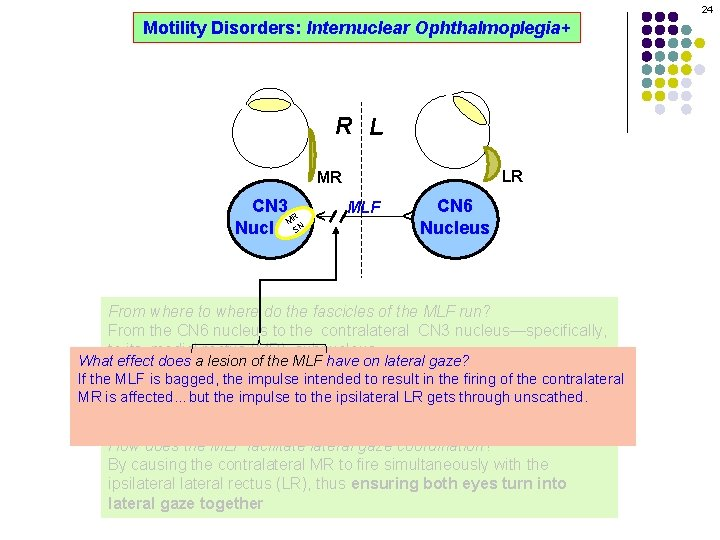24 Motility Disorders: Internuclear Ophthalmoplegia+ R L LR MLF CN 6 Nucleus ^ CN