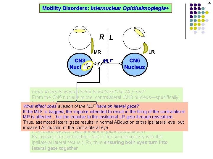 25 Motility Disorders: Internuclear Ophthalmoplegia+ R L LR MLF CN 6 Nucleus ^ CN