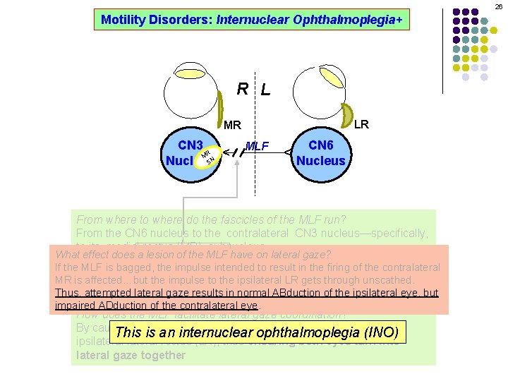 26 Motility Disorders: Internuclear Ophthalmoplegia+ R L LR MLF CN 6 Nucleus ^ CN