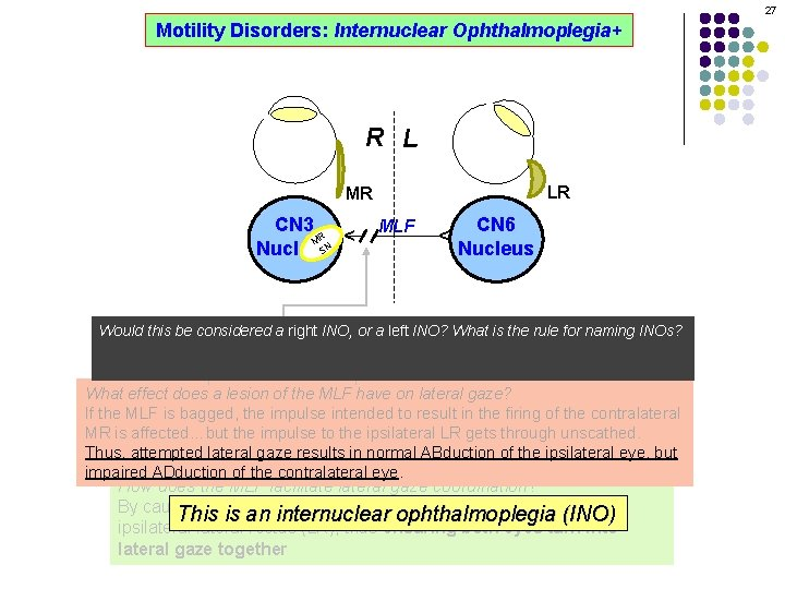 27 Motility Disorders: Internuclear Ophthalmoplegia+ R L LR MLF CN 6 Nucleus ^ CN