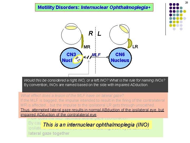 28 Motility Disorders: Internuclear Ophthalmoplegia+ R L LR MLF CN 6 Nucleus ^ CN