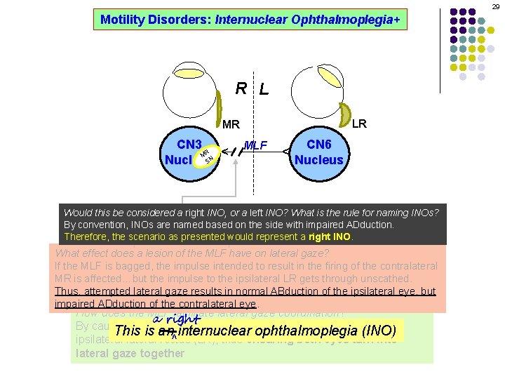 29 Motility Disorders: Internuclear Ophthalmoplegia+ R L LR MLF CN 6 Nucleus ^ CN