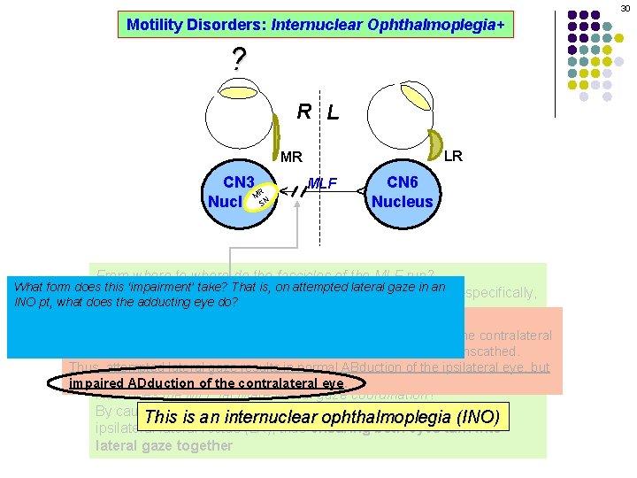 30 Motility Disorders: Internuclear Ophthalmoplegia+ ? R L LR MLF CN 6 Nucleus ^