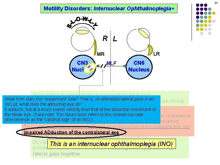 31 Motility Disorders: Internuclear Ophthalmoplegia+ R L LR MLF CN 6 Nucleus ^ CN