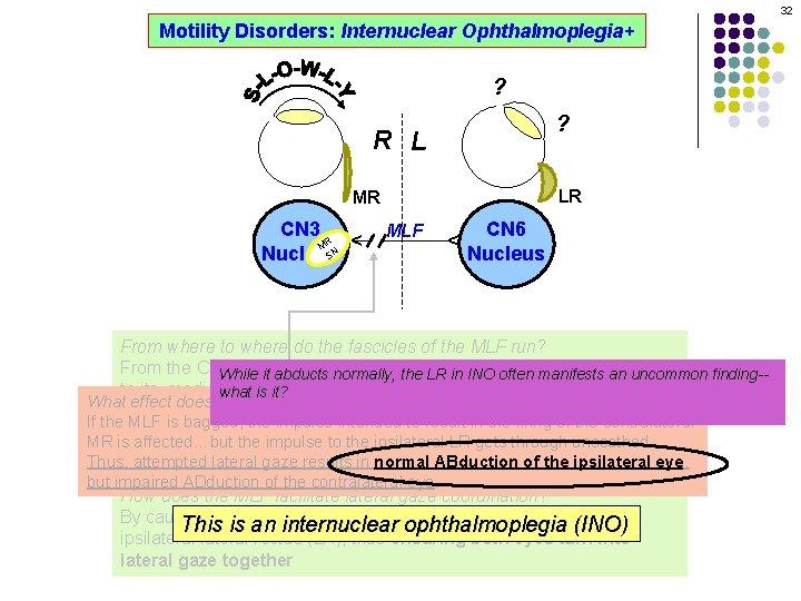 32 Motility Disorders: Internuclear Ophthalmoplegia+ ? ? R L LR MLF CN 6 Nucleus
