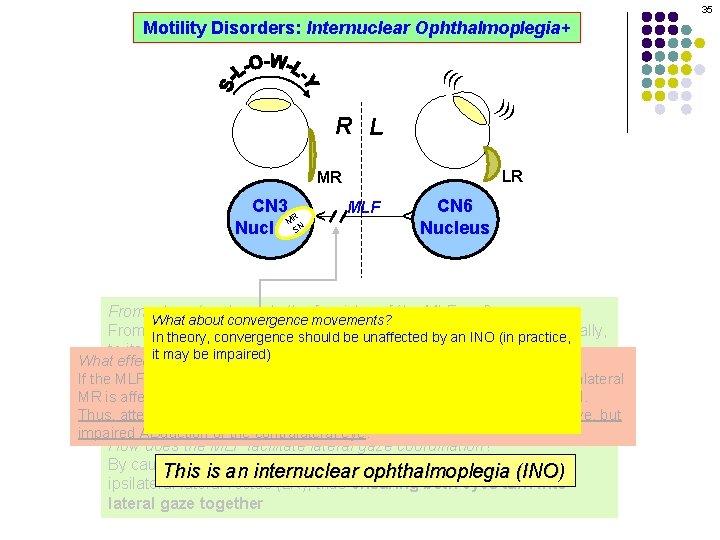 35 Motility Disorders: Internuclear Ophthalmoplegia+ ((( ))) R L LR MLF CN 6 Nucleus