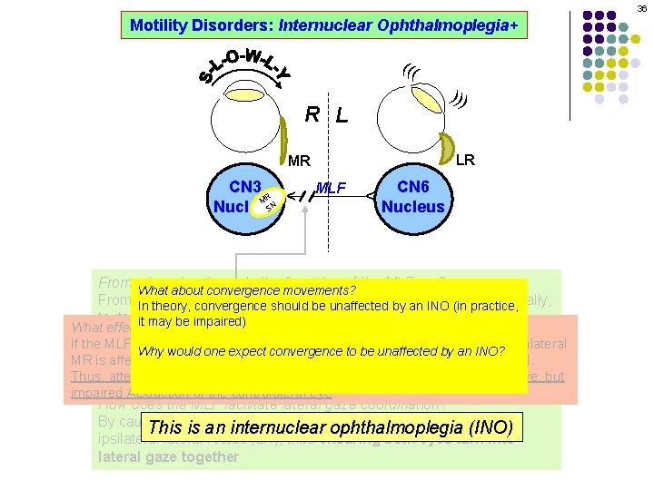 36 Motility Disorders: Internuclear Ophthalmoplegia+ ((( ))) R L LR MLF CN 6 Nucleus