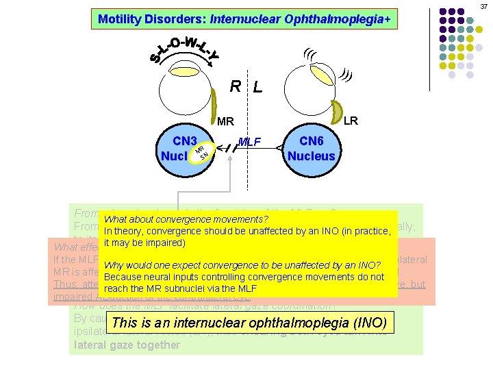 37 Motility Disorders: Internuclear Ophthalmoplegia+ ((( ))) R L LR MLF CN 6 Nucleus