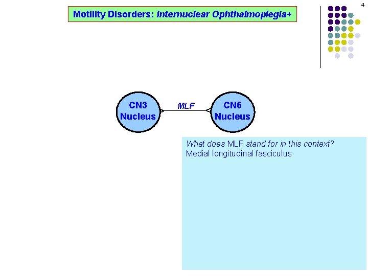 4 Motility Disorders: Internuclear Ophthalmoplegia+ MLF CN 6 Nucleus ^ ^ CN 3 Nucleus