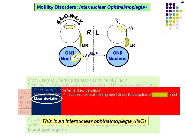 41 Motility Disorders: Internuclear Ophthalmoplegia+ ((( ))) R L LR MLF CN 6 Nucleus