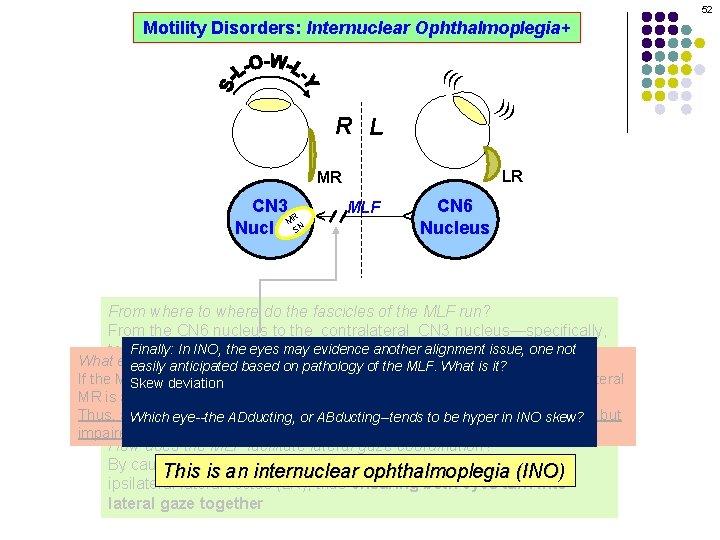 52 Motility Disorders: Internuclear Ophthalmoplegia+ ((( ))) R L LR MLF CN 6 Nucleus
