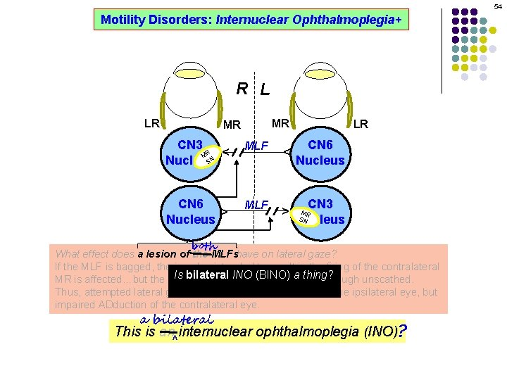 54 Motility Disorders: Internuclear Ophthalmoplegia+ R L MR CN 3 R M SN Nucleus