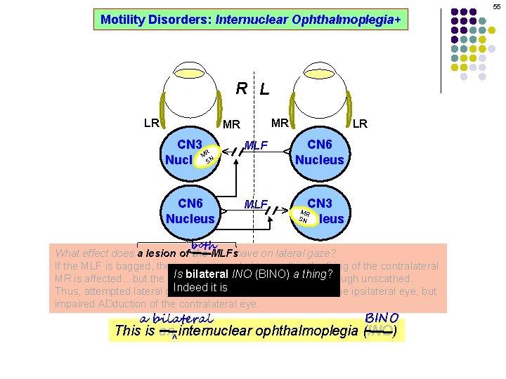 55 Motility Disorders: Internuclear Ophthalmoplegia+ R L MR CN 3 R M SN Nucleus