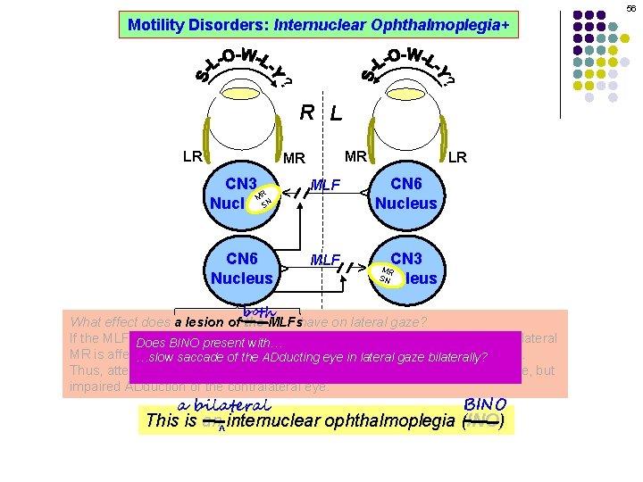 56 Motility Disorders: Internuclear Ophthalmoplegia+ ? ? R L MR CN 3 R M