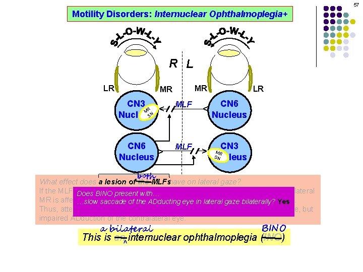 57 Motility Disorders: Internuclear Ophthalmoplegia+ R L MR CN 3 R M SN Nucleus