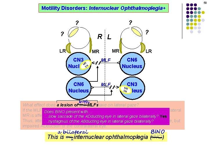 58 Motility Disorders: Internuclear Ophthalmoplegia+ ? ? R L MR CN 3 R M