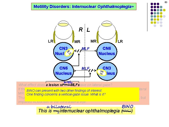 60 Motility Disorders: Internuclear Ophthalmoplegia+ R L MR CN 3 R M SN Nucleus
