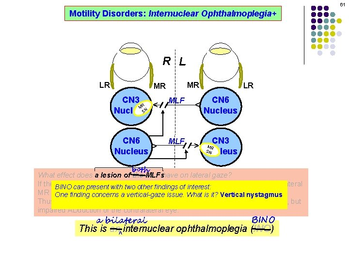 61 Motility Disorders: Internuclear Ophthalmoplegia+ R L MR CN 3 R M SN Nucleus