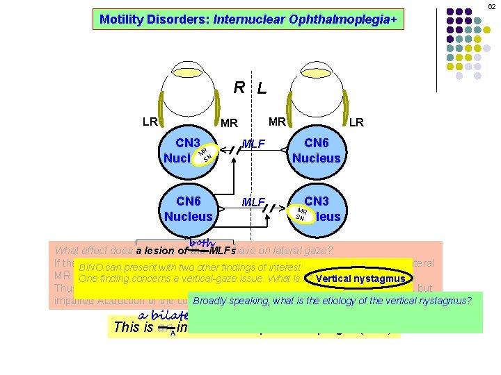 62 Motility Disorders: Internuclear Ophthalmoplegia+ R L MR CN 3 R M SN Nucleus