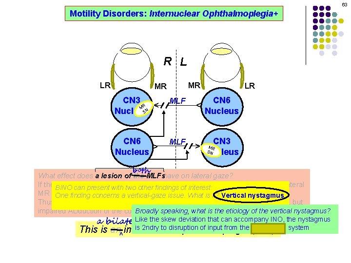 63 Motility Disorders: Internuclear Ophthalmoplegia+ R L MR CN 3 R M SN Nucleus