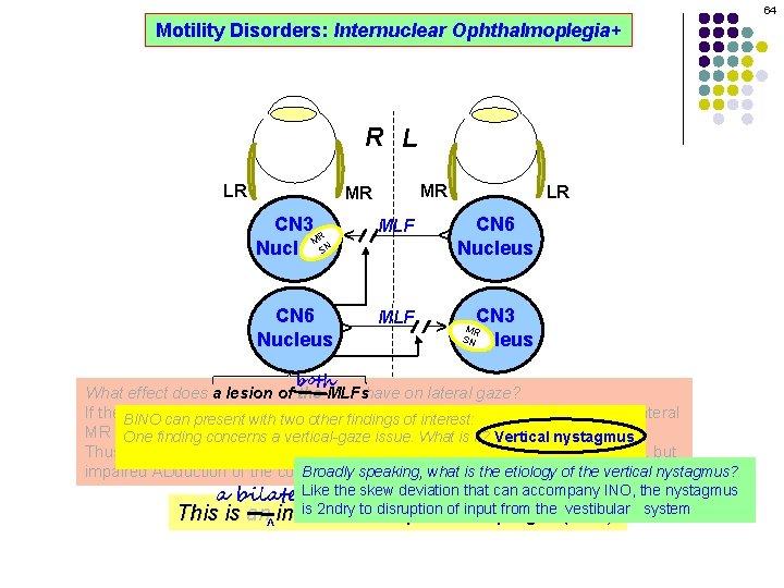 64 Motility Disorders: Internuclear Ophthalmoplegia+ R L MR CN 3 R M SN Nucleus