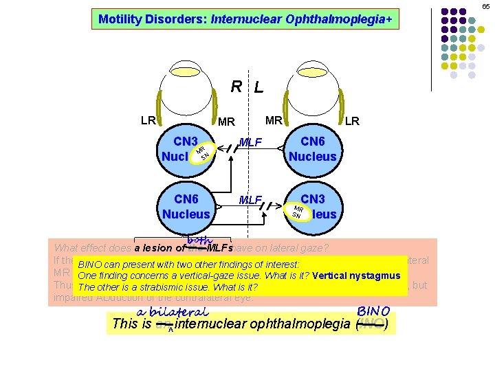 65 Motility Disorders: Internuclear Ophthalmoplegia+ R L MR CN 3 R M SN Nucleus
