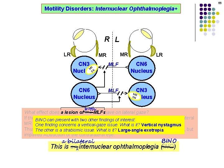 66 Motility Disorders: Internuclear Ophthalmoplegia+ R L MR CN 3 R M SN Nucleus