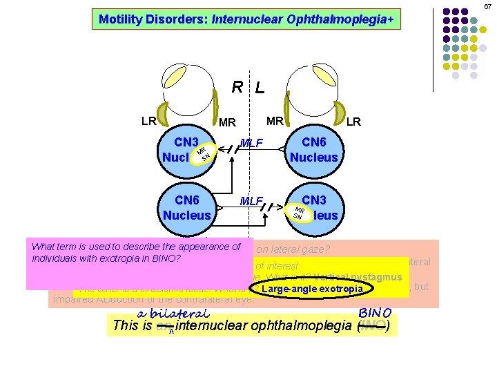 67 Motility Disorders: Internuclear Ophthalmoplegia+ R L MR CN 3 R M SN Nucleus
