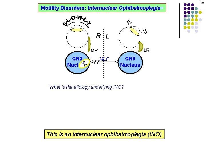 70 Motility Disorders: Internuclear Ophthalmoplegia+ ((( ))) R L LR MLF CN 6 Nucleus