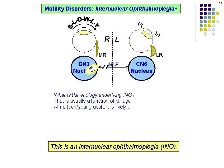73 Motility Disorders: Internuclear Ophthalmoplegia+ ((( ))) R L LR MLF CN 6 Nucleus