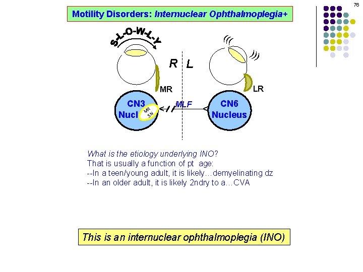 76 Motility Disorders: Internuclear Ophthalmoplegia+ ((( ))) R L LR MLF CN 6 Nucleus