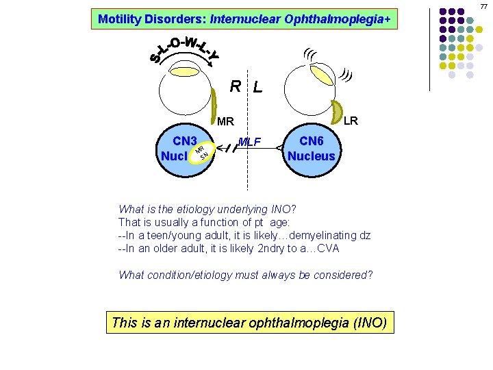 77 Motility Disorders: Internuclear Ophthalmoplegia+ ((( ))) R L LR MLF CN 6 Nucleus
