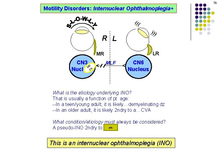 78 Motility Disorders: Internuclear Ophthalmoplegia+ ((( ))) R L LR MLF CN 6 Nucleus