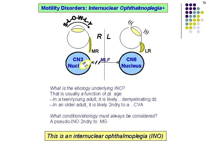 79 Motility Disorders: Internuclear Ophthalmoplegia+ ((( ))) R L LR MLF CN 6 Nucleus
