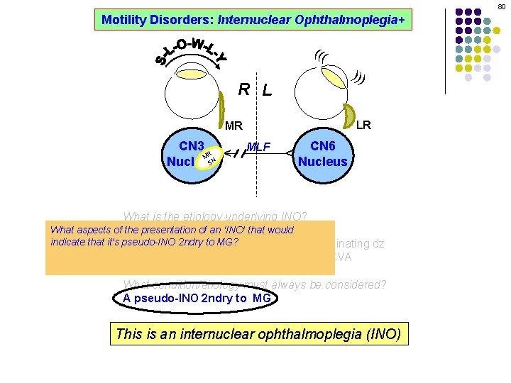 80 Motility Disorders: Internuclear Ophthalmoplegia+ ((( ))) R L LR MLF CN 6 Nucleus