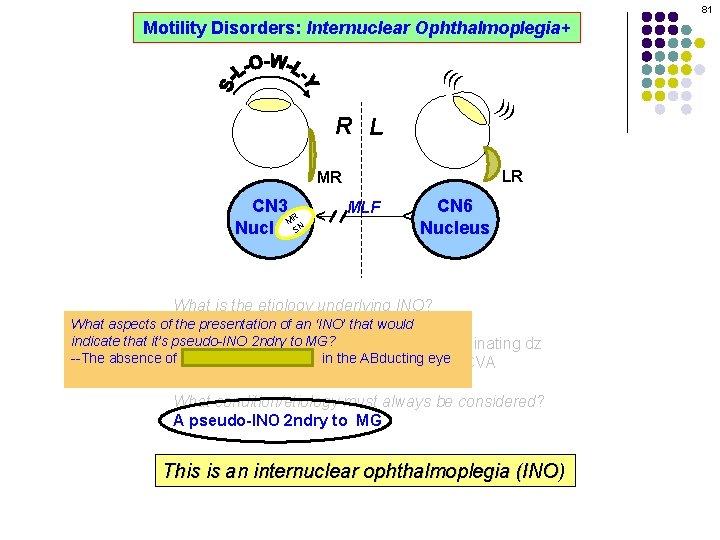 81 Motility Disorders: Internuclear Ophthalmoplegia+ ((( ))) R L LR MLF CN 6 Nucleus