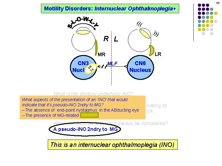 83 Motility Disorders: Internuclear Ophthalmoplegia+ ((( ))) R L LR MLF CN 6 Nucleus