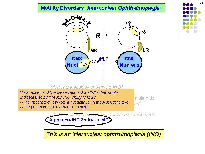 84 Motility Disorders: Internuclear Ophthalmoplegia+ ((( ))) R L LR MLF CN 6 Nucleus