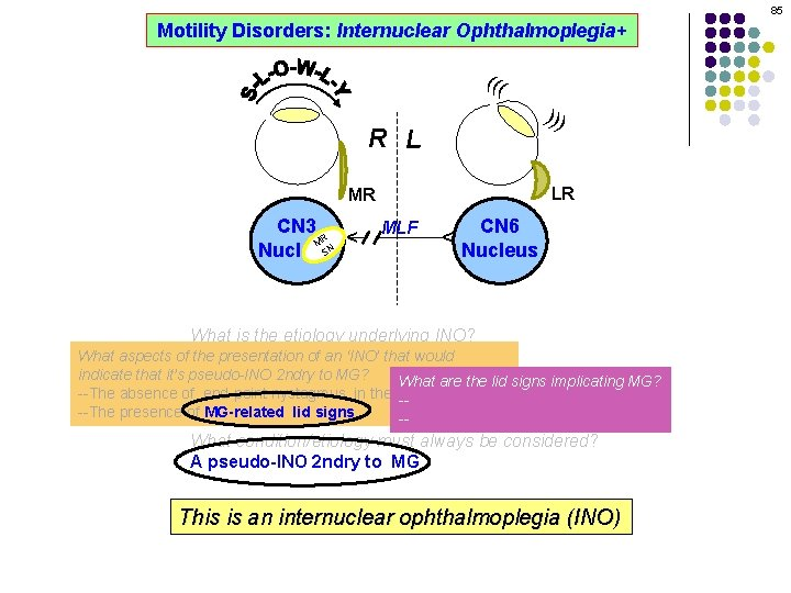 85 Motility Disorders: Internuclear Ophthalmoplegia+ ((( ))) R L LR MLF CN 6 Nucleus