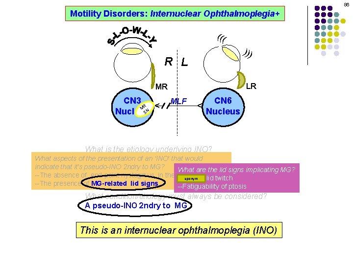 86 Motility Disorders: Internuclear Ophthalmoplegia+ ((( ))) R L LR MLF CN 6 Nucleus