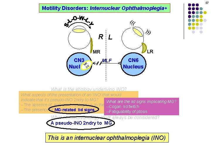 87 Motility Disorders: Internuclear Ophthalmoplegia+ ((( ))) R L LR MLF CN 6 Nucleus