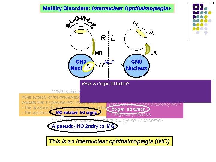 88 Motility Disorders: Internuclear Ophthalmoplegia+ ((( ))) R L LR MLF CN 6 Nucleus