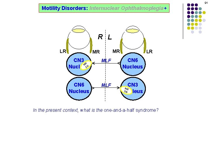 91 Motility Disorders: Internuclear Ophthalmoplegia+ R L MR CN 3 R M SN Nucleus