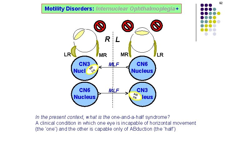 92 Motility Disorders: Internuclear Ophthalmoplegia+ R L MR CN 3 R M SN Nucleus